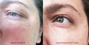 NeriumAD-after-2-weeks-eyes