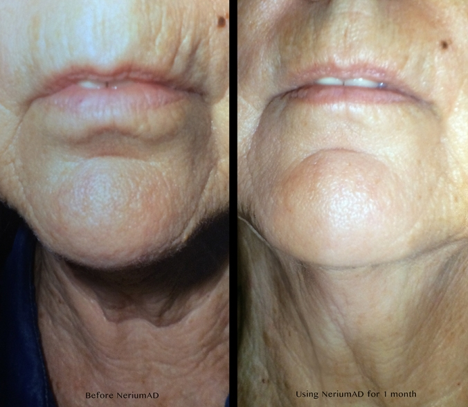 My mother's photos before Nerium and after using NeriumAD for a month.